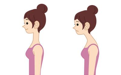 janda felső kereszt szindróma