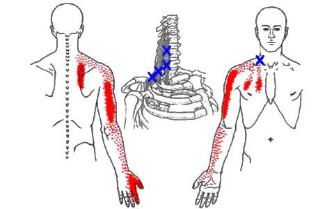 trigger pont nyak vállfájdalom kézfájdalom